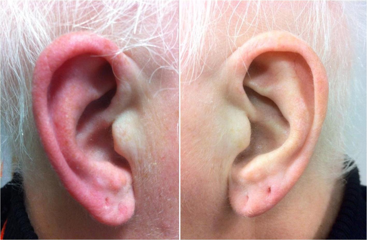 causes oreille gauche chauffe rouge